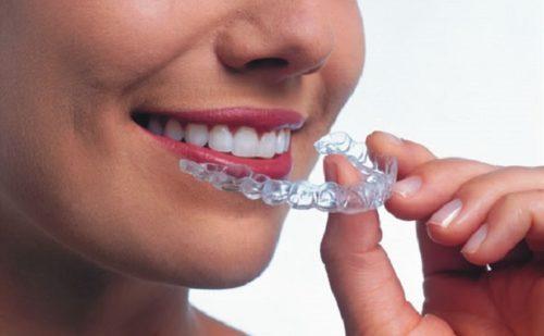Apparecchio invisibile e denti dritti: sola estetica o anche benessere?